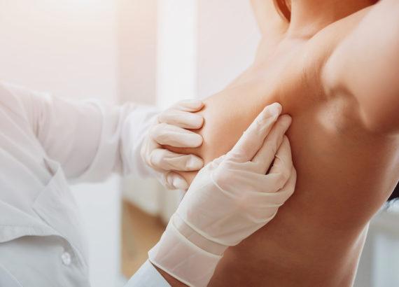 dlaczego nowotwory piersi nawracaja hormonozależy rak piersi najnowsze metody wspomagania leczenia